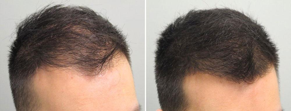 Андрогенное выпадение волос у мужчин фото 1