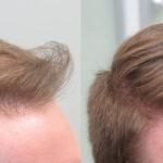 Андрогенное выпадение волос у мужчин фото 3