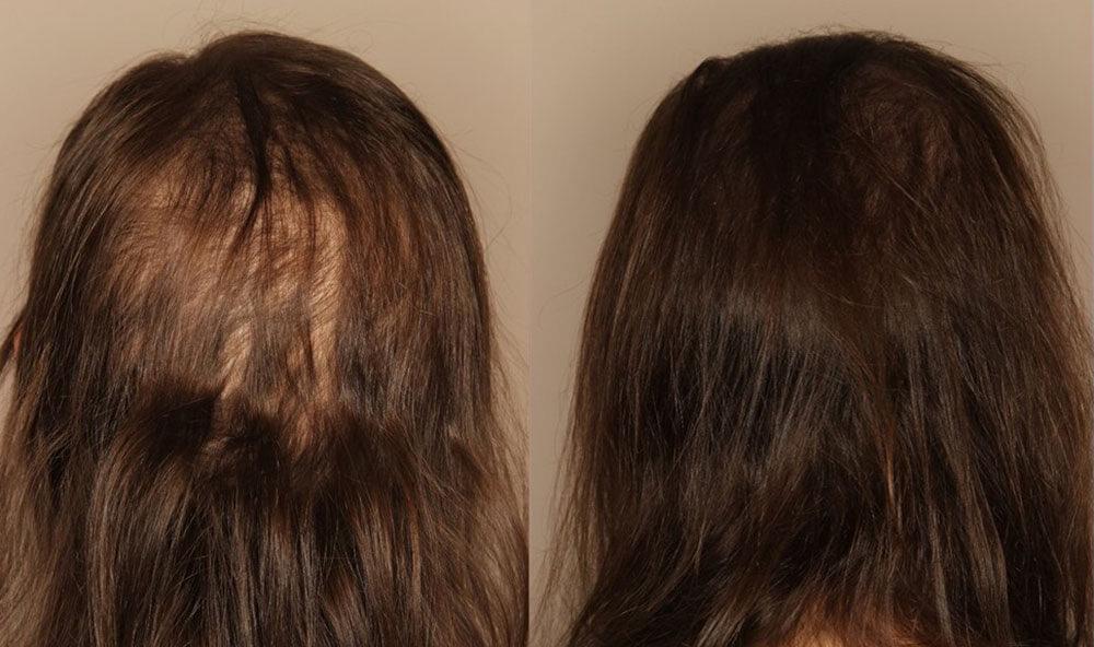 Диффузное телогеновое выпадение волос у женщин фото