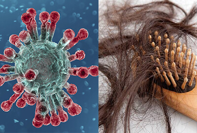 Covid-19 та проблема випадіння волосся